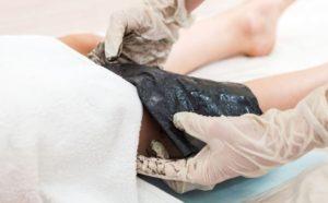 лечение коленей грязями